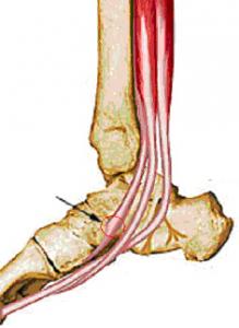 tibiales posterior